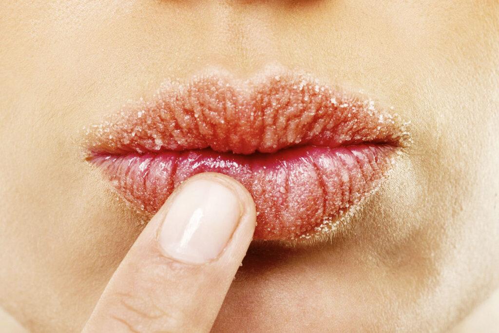 Scrub labbra allo zucchero fai-da-te