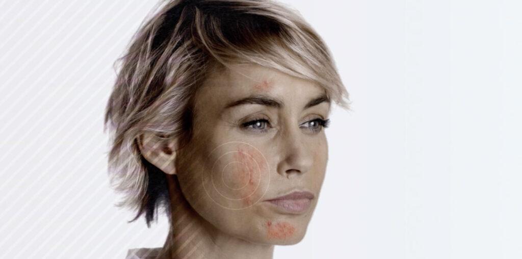Rosacea: il Covid fa paura e saltano le visite dermatologiche